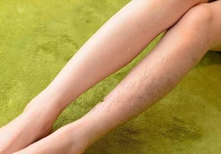 4 lợi ích bất ngờ từ việc triệt lông