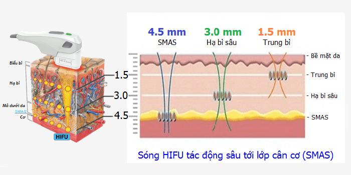 Nâng cơ xóa nhăn công nghệ Hifu Va02