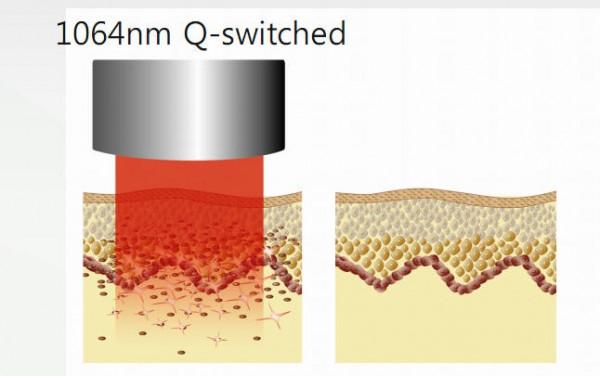 Nguyên Lý trị liệu máy Laser